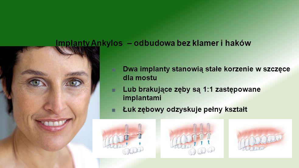 Dwa implanty stanowią stałe korzenie w szczęce dla mostu Lub brakujące zęby są 1:1 zastępowane implantami Łuk zębowy odzyskuje pełny kształt Implanty