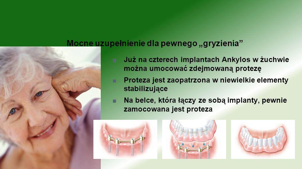 Już na czterech implantach Ankylos w żuchwie można umocować zdejmowaną protezę Proteza jest zaopatrzona w niewielkie elementy stabilizujące Na belce,