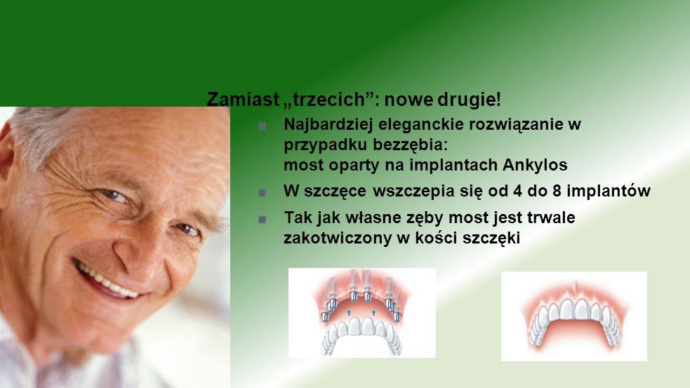 Najbardziej eleganckie rozwiązanie w przypadku bezzębia: most oparty na implantach Ankylos W szczęce wszczepia się od 4 do 8 implantów Tak jak własne