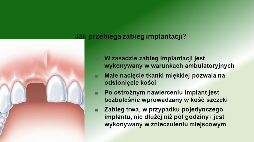 W zasadzie zabieg implantacji jest wykonywany w warunkach ambulatoryjnych Małe nacięcie tkanki miękkiej pozwala na odsłonięcie kości Po ostrożnym nawi