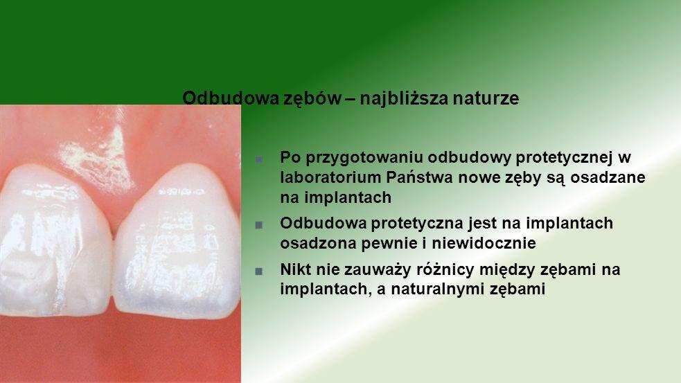 Po przygotowaniu odbudowy protetycznej w laboratorium Państwa nowe zęby są osadzane na implantach Odbudowa protetyczna jest na implantach osadzona pew