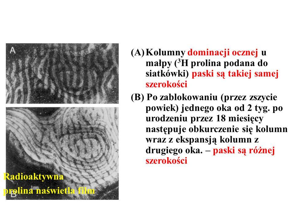 (A)Kolumny dominacji ocznej u małpy ( 3 H prolina podana do siatkówki) paski są takiej samej szerokości (B) Po zablokowaniu (przez zszycie powiek) jed