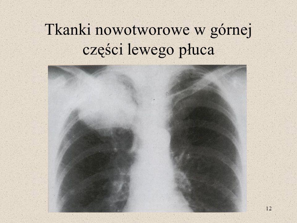 12 Tkanki nowotworowe w górnej części lewego płuca