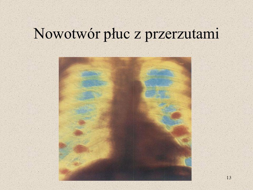 13 Nowotwór płuc z przerzutami