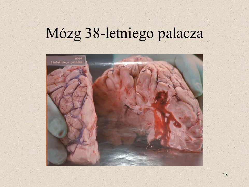 18 Mózg 38-letniego palacza