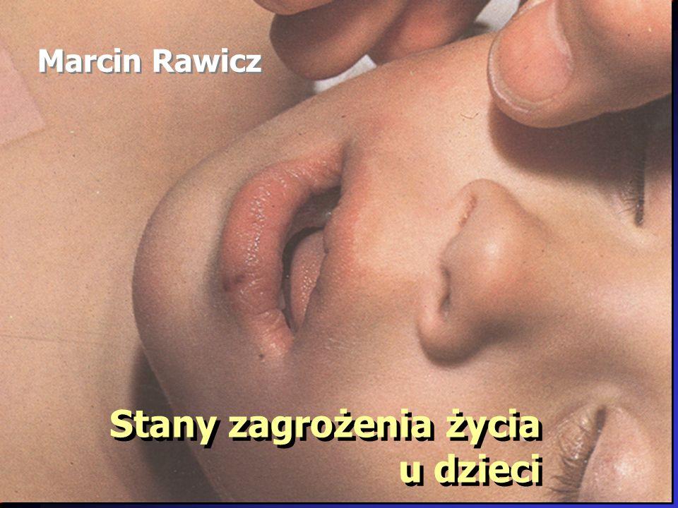 Stany zagrożenia życia u dzieci Marcin Rawicz