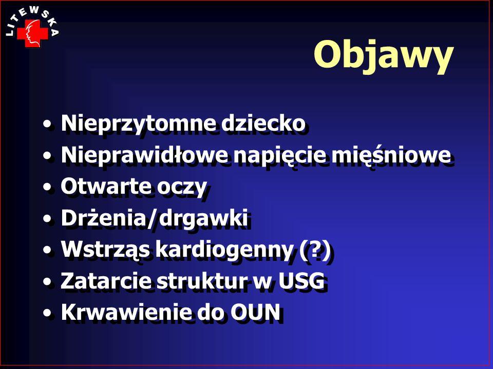 Objawy Nieprzytomne dziecko Nieprawidłowe napięcie mięśniowe Otwarte oczy Drżenia/drgawki Wstrząs kardiogenny (?) Zatarcie struktur w USG Krwawienie d