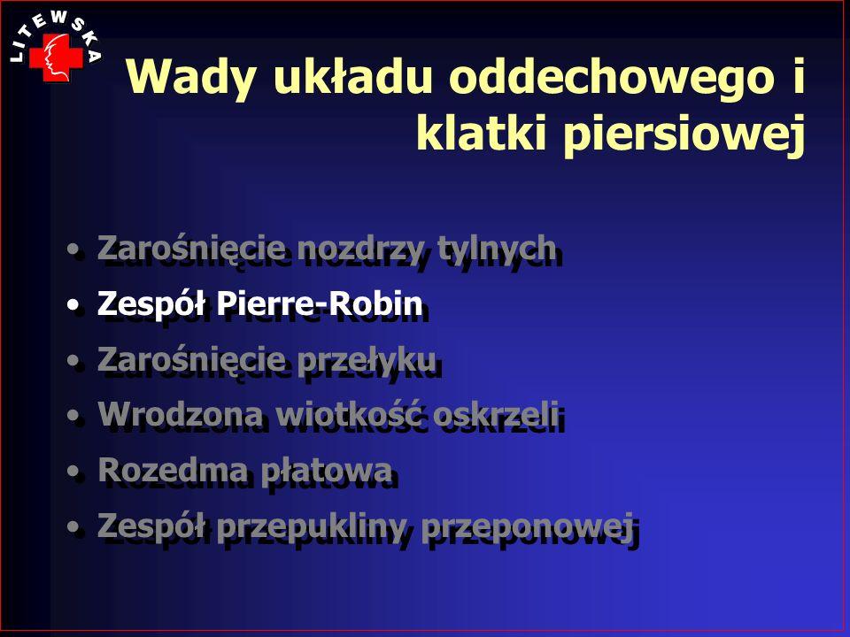 Wady układu oddechowego i klatki piersiowej Zarośnięcie nozdrzy tylnych Zespół Pierre-Robin Zarośnięcie przełyku Wrodzona wiotkość oskrzeli Rozedma pł