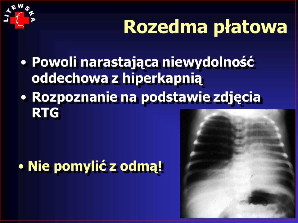 Rozedma płatowa Powoli narastająca niewydolność oddechowa z hiperkapnią Rozpoznanie na podstawie zdjęcia RTG Powoli narastająca niewydolność oddechowa