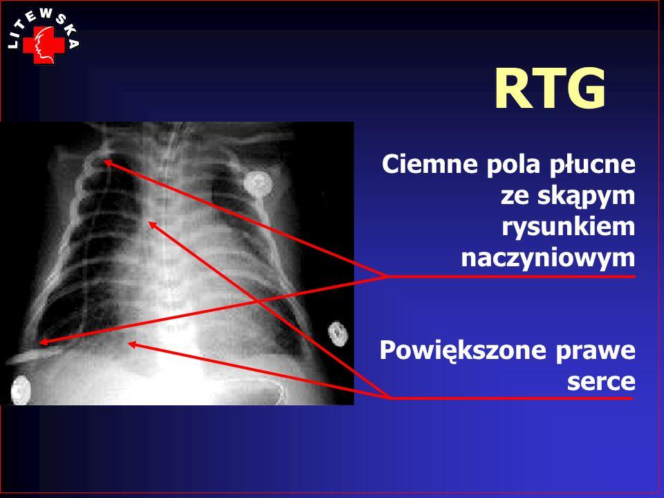 RTG Ciemne pola płucne ze skąpym rysunkiem naczyniowym Powiększone prawe serce