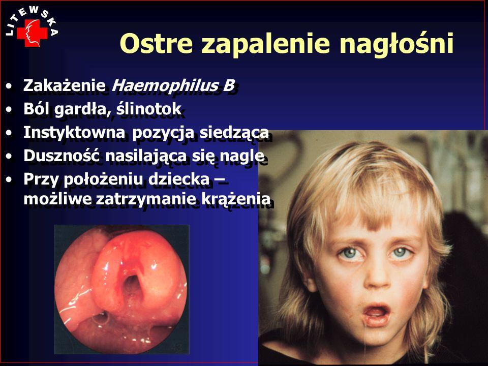 Ostre zapalenie nagłośni Zakażenie Haemophilus B Ból gardła, ślinotok Instyktowna pozycja siedząca Duszność nasilająca się nagle Przy położeniu dzieck