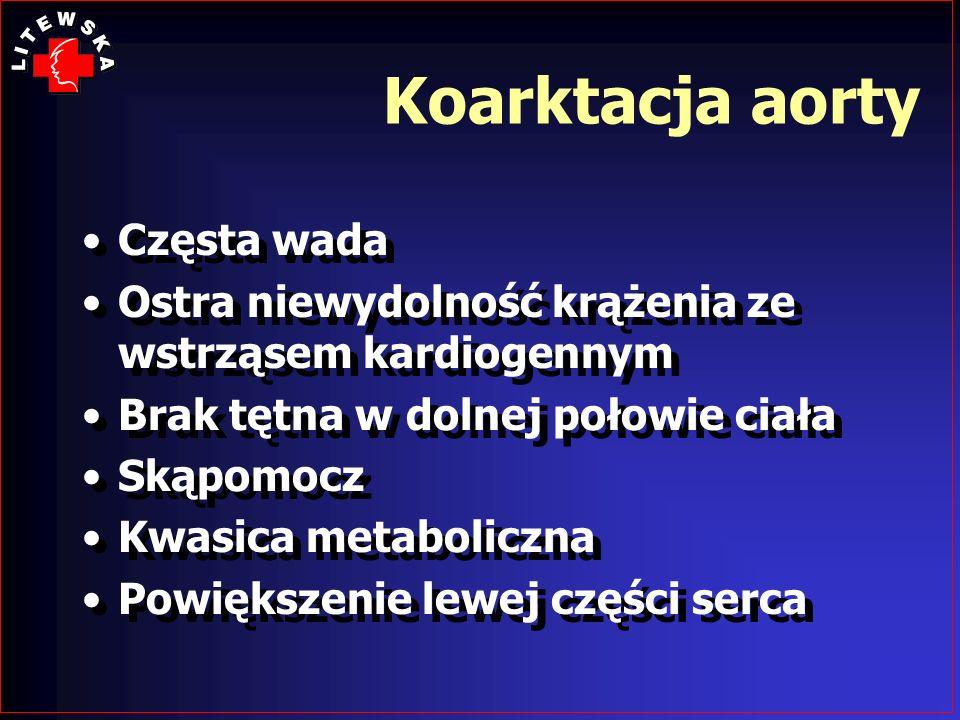 Koarktacja aorty Częsta wada Ostra niewydolność krążenia ze wstrząsem kardiogennym Brak tętna w dolnej połowie ciała Skąpomocz Kwasica metaboliczna Po