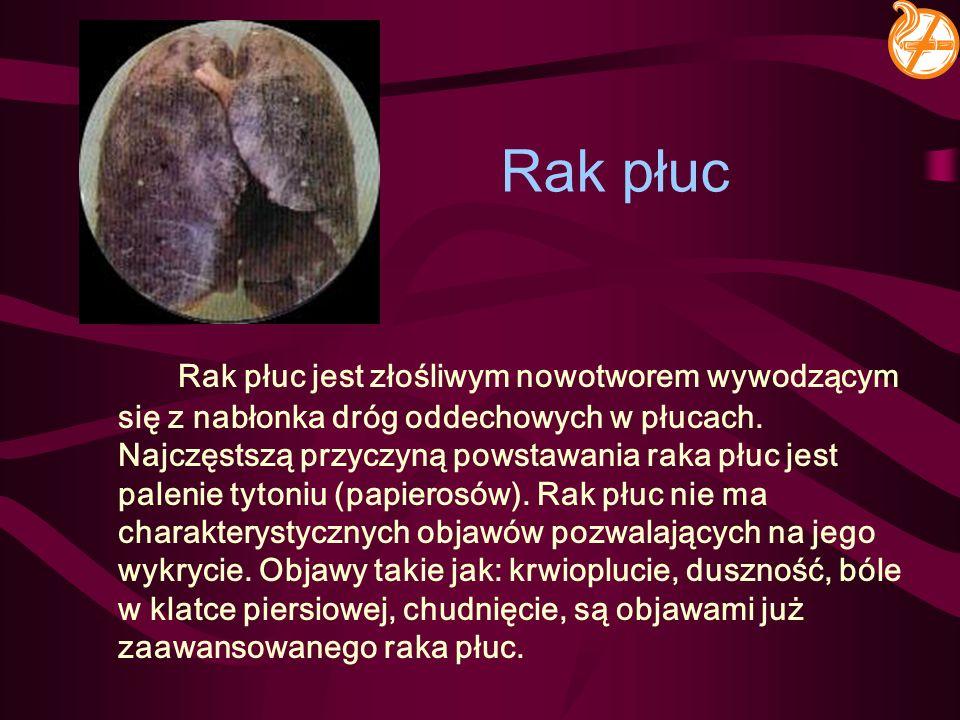 Rak płuc Rak płuc jest złośliwym nowotworem wywodzącym się z nabłonka dróg oddechowych w płucach. Najczęstszą przyczyną powstawania raka płuc jest pal