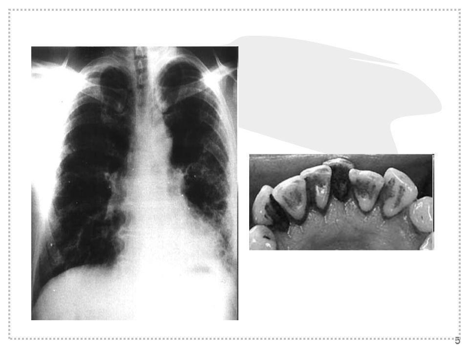 4 Do powszechnych od-tytoniowych schorzeń należą choroba niedokrwienna serca, rak płuca oraz przewlekłe obturacyjna choroba płuc. Wśród uzależnionych