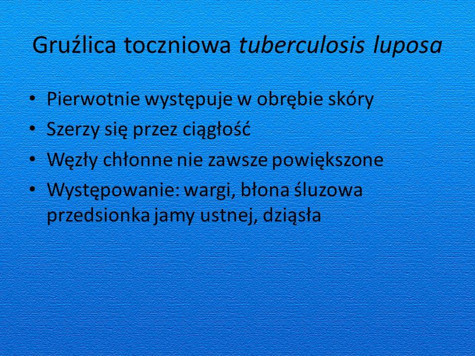 Gruźlica toczniowa tuberculosis luposa Pierwotnie występuje w obrębie skóry Szerzy się przez ciągłość Węzły chłonne nie zawsze powiększone Występowanie: wargi, błona śluzowa przedsionka jamy ustnej, dziąsła