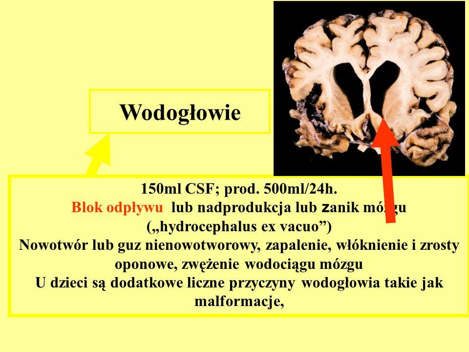 150ml CSF; prod. 500ml/24h. Blok odpływu lub nadprodukcja lub z anik mózgu (hydrocephalus ex vacuo) Nowotwór lub guz nienowotworowy, zapalenie, włókni