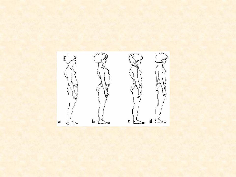 1.Postawa skoliotyczna - jest to wstępne stadium wady.