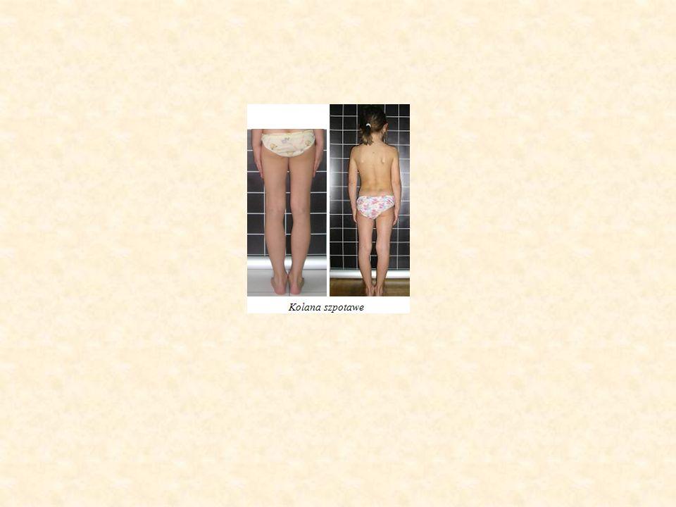 Badania specjalistyczne: - Fotograficzna rejestracja sylwetki ciała z analizą postawy ciała - Baropedograficzne badanie obciążania stóp - Podograficzna rejestracja podeszwowej strony stóp - Testy funkcjonalne oceniające zakresy ruchomości