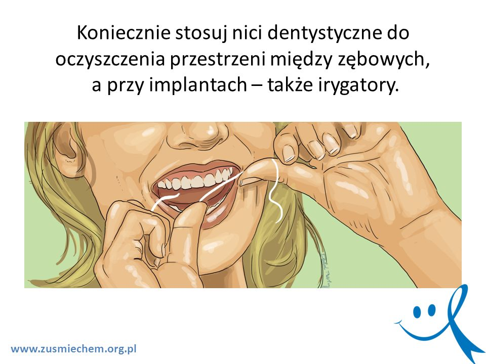 Koniecznie stosuj nici dentystyczne do oczyszczenia przestrzeni między zębowych, a przy implantach – także irygatory. www.zusmiechem.org.pl