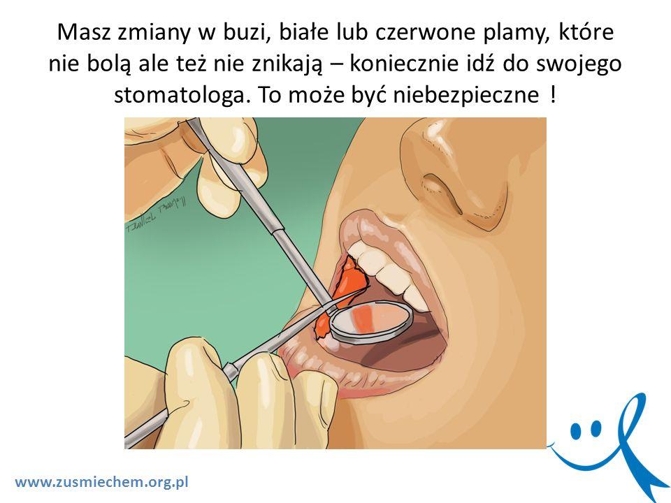 Masz zmiany w buzi, białe lub czerwone plamy, które nie bolą ale też nie znikają – koniecznie idź do swojego stomatologa. To może być niebezpieczne !
