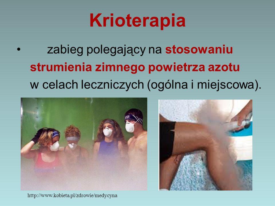 Krioterapia zabieg polegający na stosowaniu strumienia zimnego powietrza azotu w celach leczniczych (ogólna i miejscowa). http://www.kobieta.pl/zdrowi