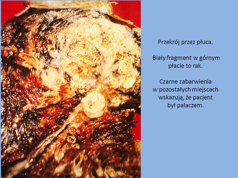 Przekrój przez płuca. Biały fragment w górnym płacie to rak. Czarne zabarwienia w pozostałych miejscach wskazują, że pacjent był palaczem.