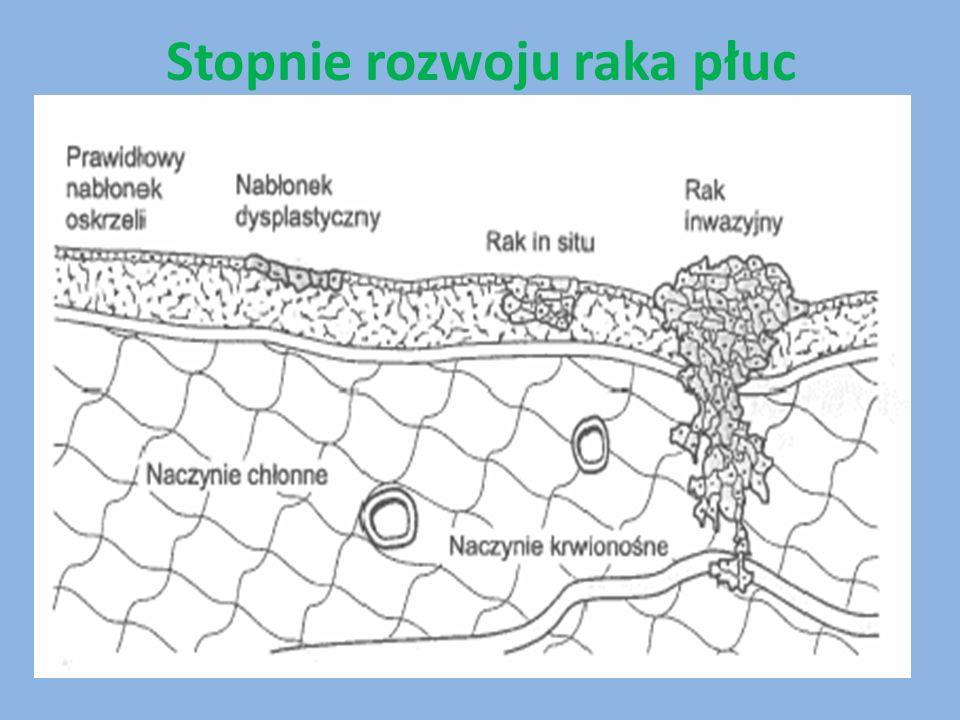 Gdzie szukać wsparcia: Stowarzyszenie Walki z Rakiem www.rakpluca.org.pl Bezpłatna infolinia dla chorych na nowotwory złośliwe i ich bliskich.