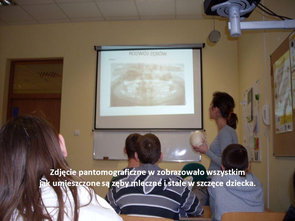 Zdjęcie pantomograficzne w zobrazowało wszystkim jak umieszczone są zęby mleczne i stałe w szczęce dziecka.