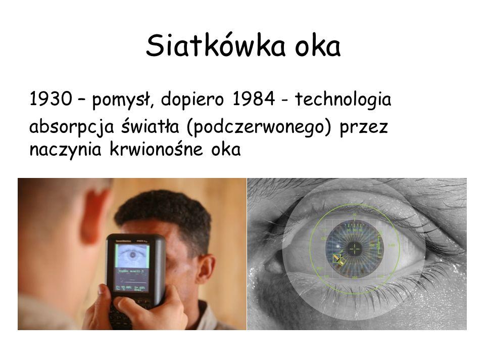Siatkówka oka 1930 – pomysł, dopiero 1984 - technologia absorpcja światła (podczerwonego) przez naczynia krwionośne oka