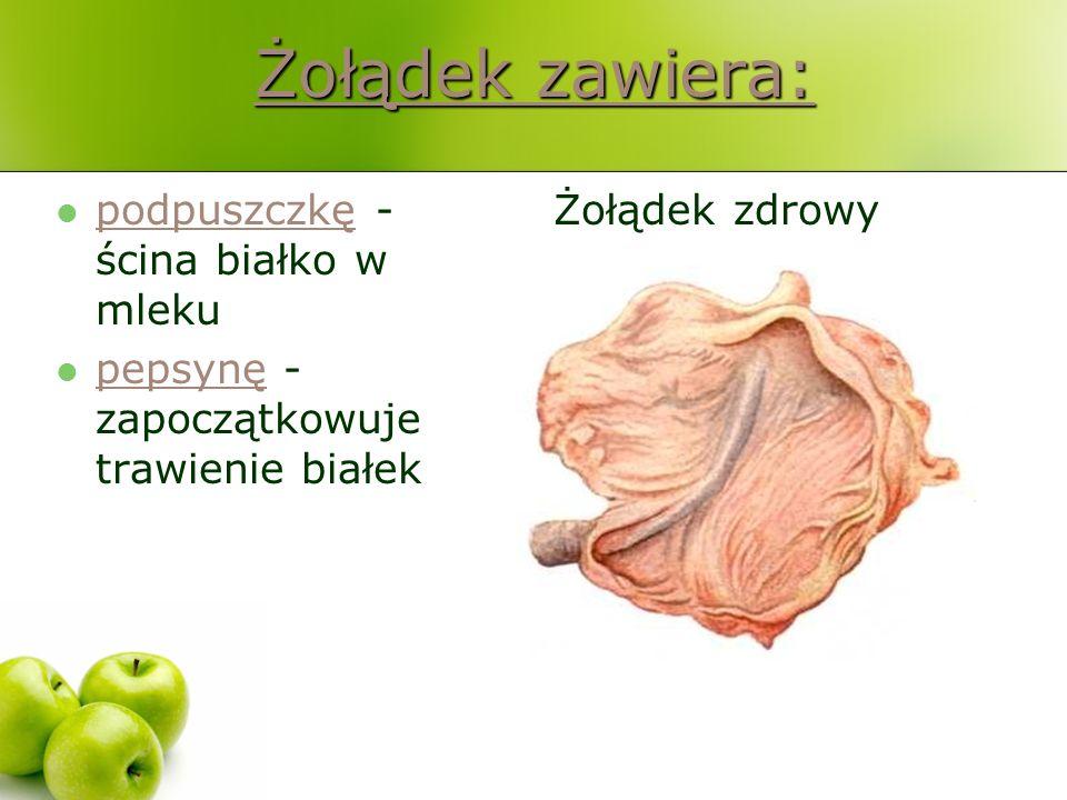 Żołądek zawiera: Żołądek zawiera: podpuszczkę - ścina białko w mleku podpuszczkę pepsynę - zapoczątkowuje trawienie białek pepsynę Żołądek zdrowy