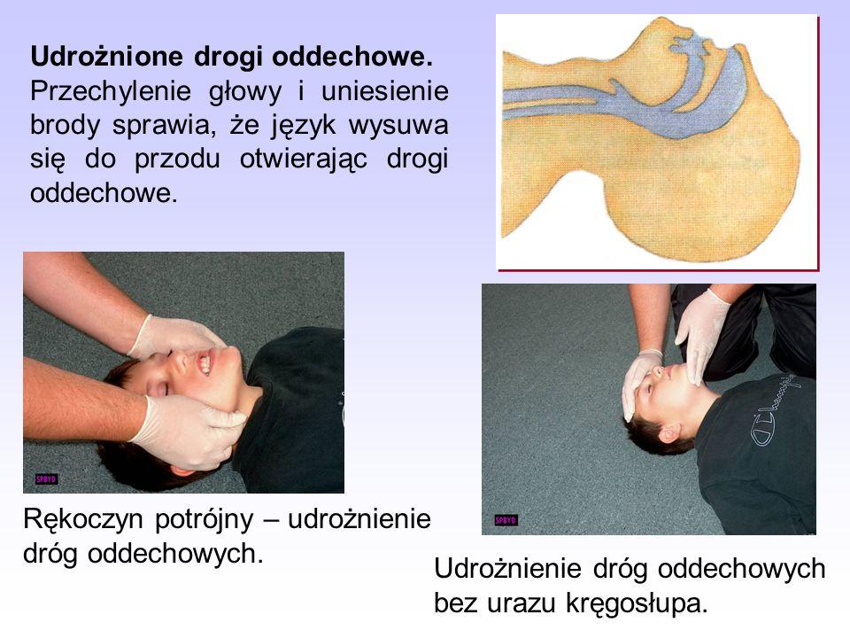 Objawy: zaczerwienienie, ból, obrzęk, wrażliwość skóry. Oparzenie I stopnia