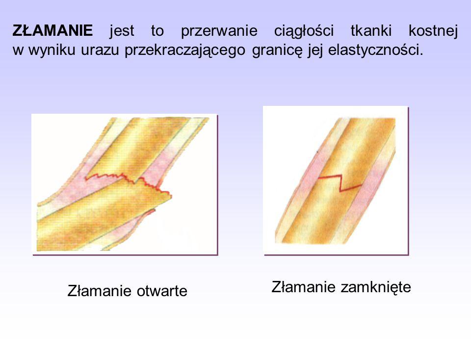 Objawy złamania: ból, zmiana zabarwienia skóry, obrzęk i krwiak (w złamaniu zamkniętym), utrudnienie poruszania, nieprawidłowe ustawienie kończyny, zmiana obrysu i kształtu, nieprawidłowa ruchomość, rana i krwawienie (w złamaniu otwartym), widoczne w ranie odłamy kostne.