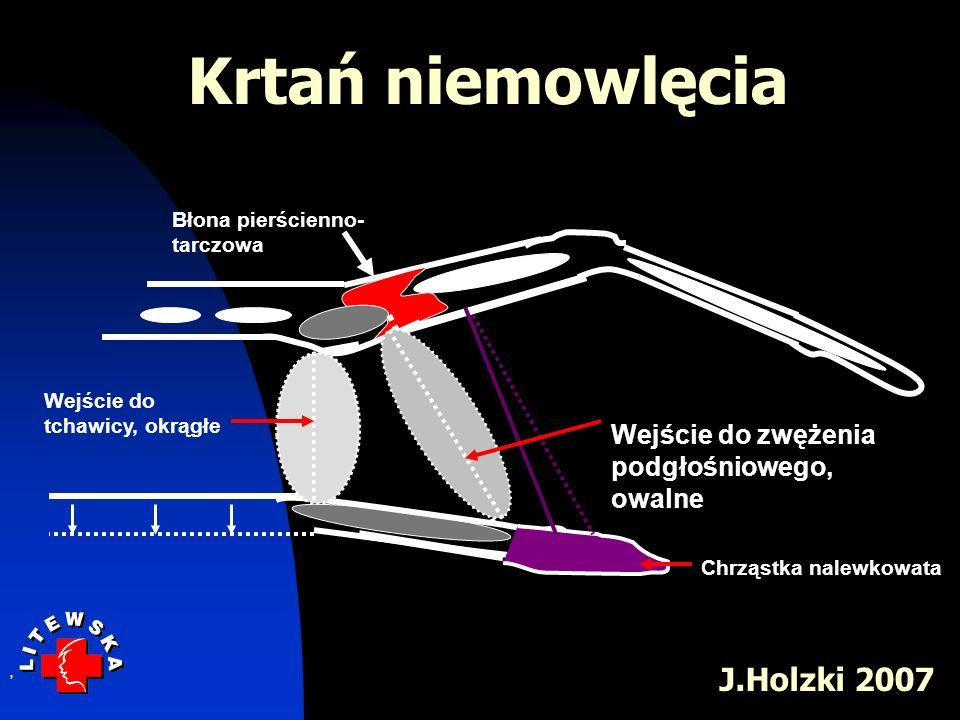 Błona pierścienno- tarczowa, Wejście do tchawicy, okrągłe Wejście do zwężenia podgłośniowego, owalne Chrząstka nalewkowata Krtań niemowlęcia J.Holzki
