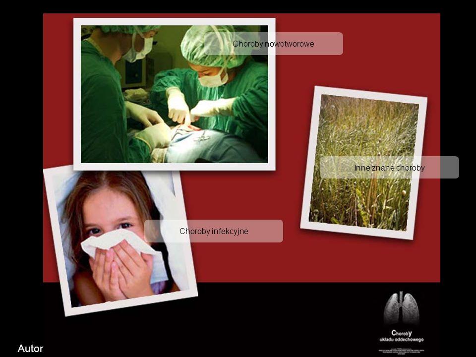 Me nu glo wn e Choroby nowotworowe Choroby infekcyjne Inne znane choroby Autor