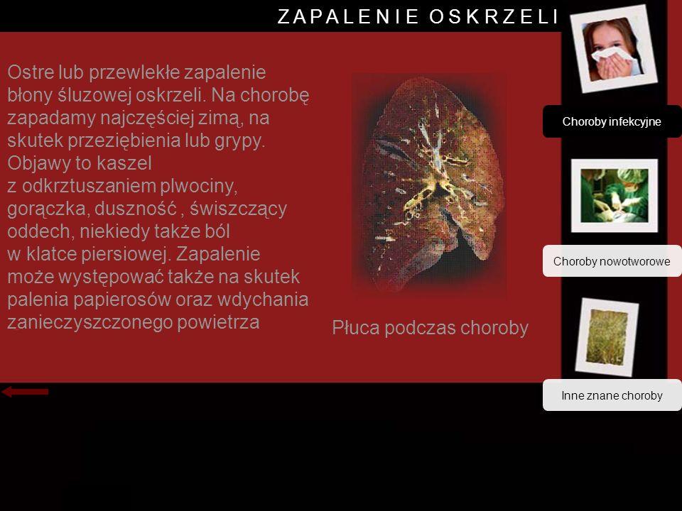 Choroby infekcyjne Choroby nowotworowe Z A P A L E N I E O S K R Z E L I Ostre lub przewlekłe zapalenie błony śluzowej oskrzeli.
