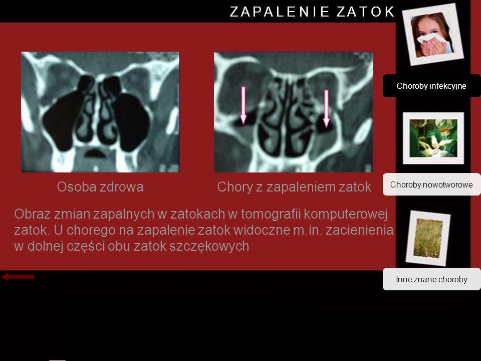 Z A P A L E N I E Z A T O K Osoba zdrowaChory z zapaleniem zatok Obraz zmian zapalnych w zatokach w tomografii komputerowej zatok.