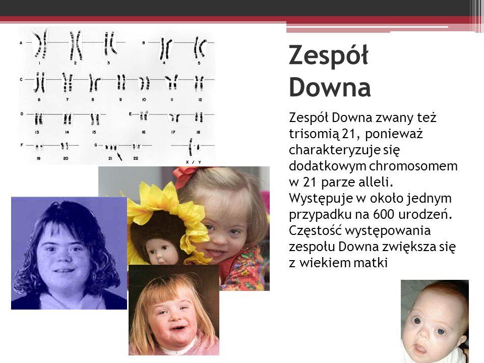 Zespół Downa Zespół Downa zwany też trisomią 21, ponieważ charakteryzuje się dodatkowym chromosomem w 21 parze alleli. Występuje w około jednym przypa