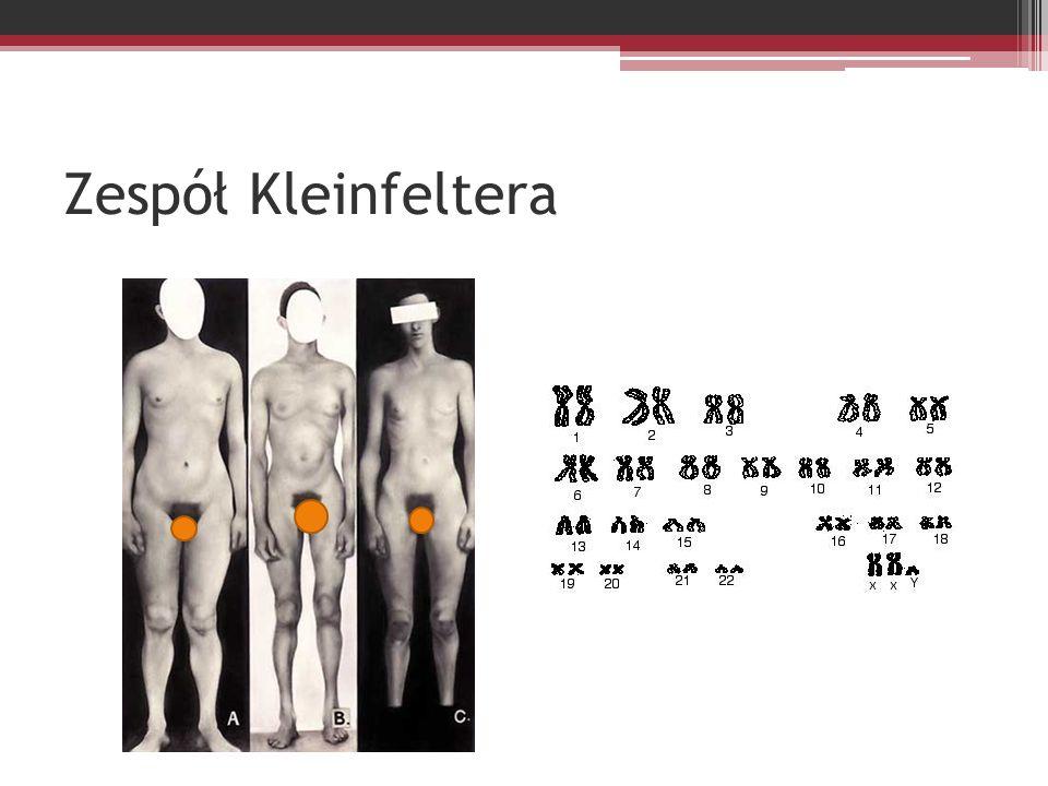 Zespół Kleinfeltera
