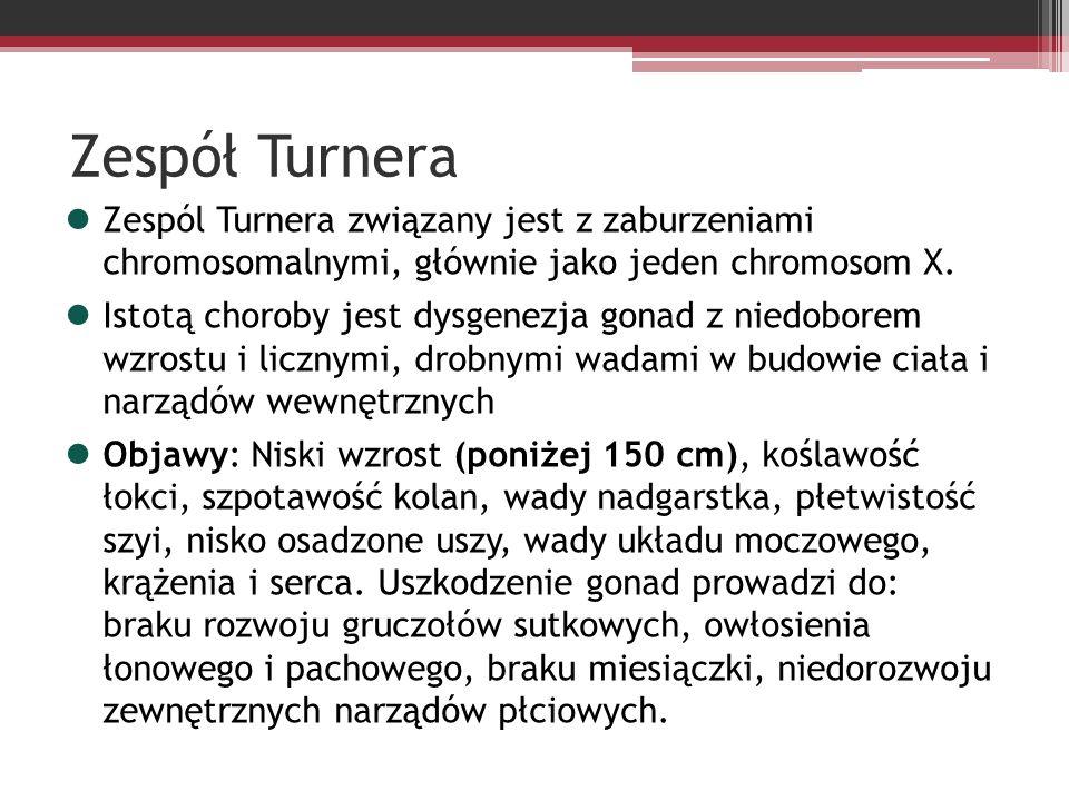 Zespół Turnera Zespól Turnera związany jest z zaburzeniami chromosomalnymi, głównie jako jeden chromosom X. Istotą choroby jest dysgenezja gonad z nie
