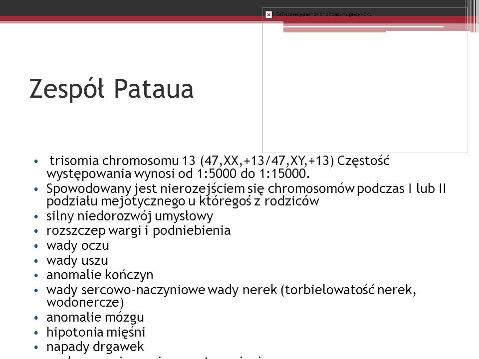 Zespół Pataua trisomia chromosomu 13 (47,XX,+13/47,XY,+13) Częstość występowania wynosi od 1:5000 do 1:15000. Spowodowany jest nierozejściem się chrom