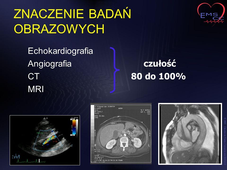 ZNACZENIE BADAŃ OBRAZOWYCH Echokardiografia Angiografia CT MRI czułość 80 do 100%