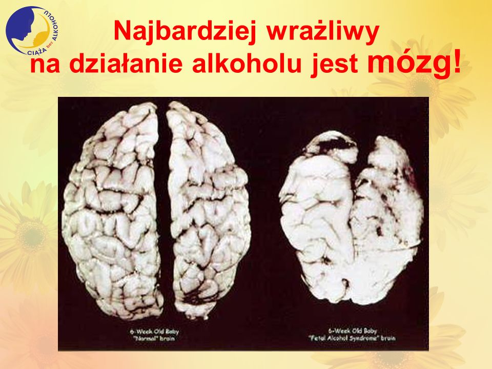 Najbardziej wrażliwy na działanie alkoholu jest mózg!