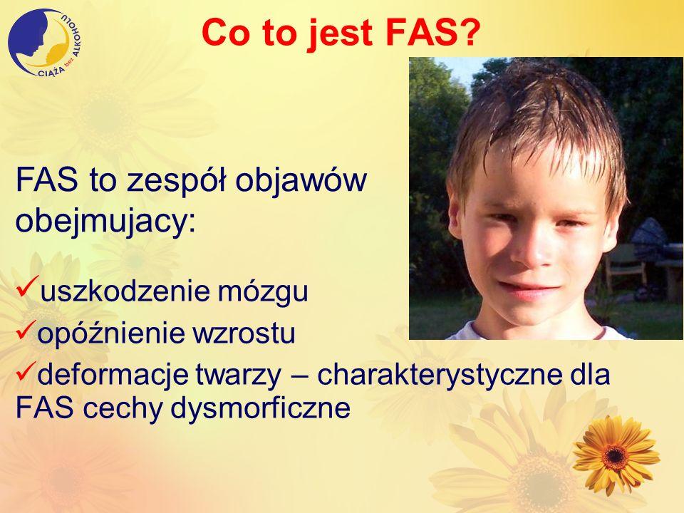 Co to jest FAS? uszkodzenie mózgu opóźnienie wzrostu deformacje twarzy – charakterystyczne dla FAS cechy dysmorficzne FAS to zespół objawów obejmujacy