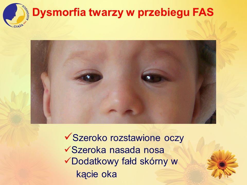 Dysmorfia twarzy w przebiegu FAS Szeroko rozstawione oczy Szeroka nasada nosa Dodatkowy fałd skórny w kącie oka