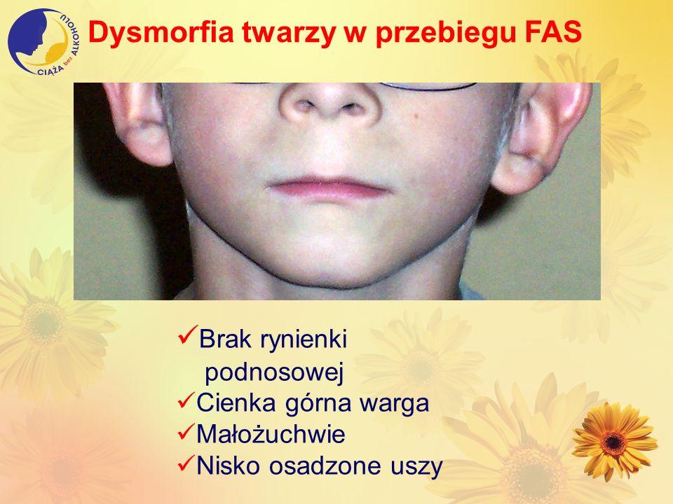 Dysmorfia twarzy w przebiegu FAS Brak rynienki podnosowej Cienka górna warga Małożuchwie Nisko osadzone uszy