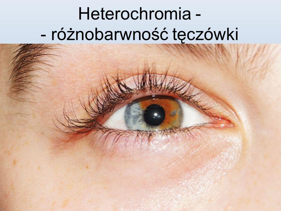 Heterochromia - - różnobarwność tęczówki