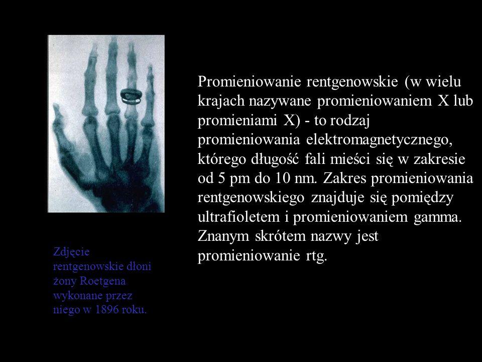 Promieniowanie rentgenowskie (w wielu krajach nazywane promieniowaniem X lub promieniami X) - to rodzaj promieniowania elektromagnetycznego, którego d