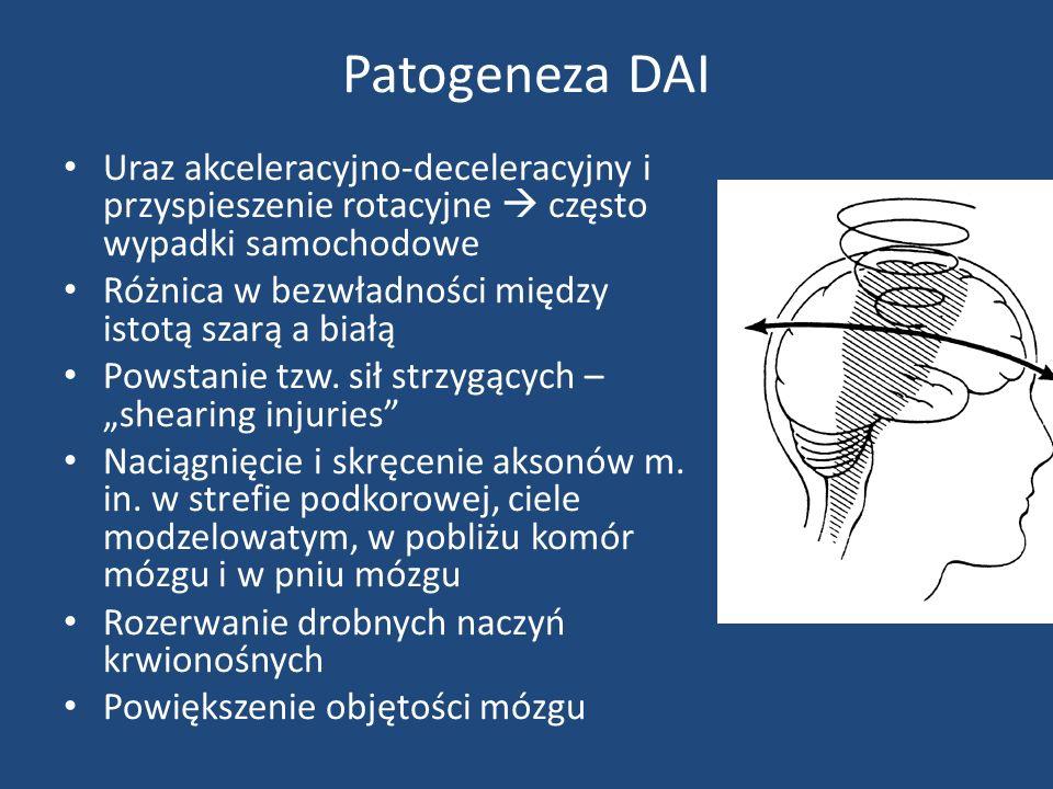 Patogeneza DAI Uraz akceleracyjno-deceleracyjny i przyspieszenie rotacyjne często wypadki samochodowe Różnica w bezwładności między istotą szarą a białą Powstanie tzw.