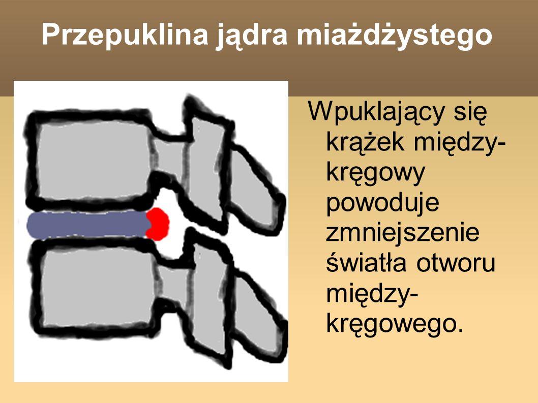 Wpuklający się krążek między- kręgowy powoduje zmniejszenie światła otworu między- kręgowego.