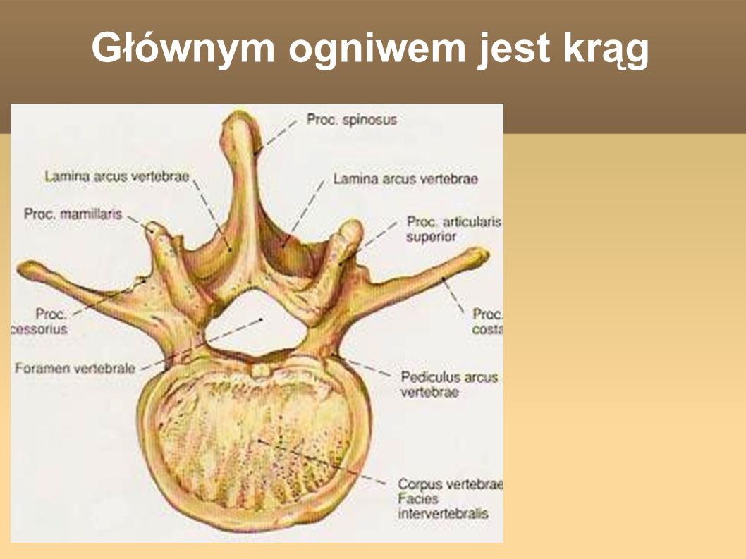 Spondyloza Wpuklający się krążek miedzy- kręgowy oraz zmienione zwyrodnieniowo stawy międzykręgowe zmniejszają światło otworu międzykręgowego.